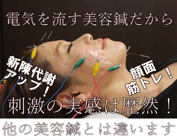 名古屋の顔面筋トレ美容鍼