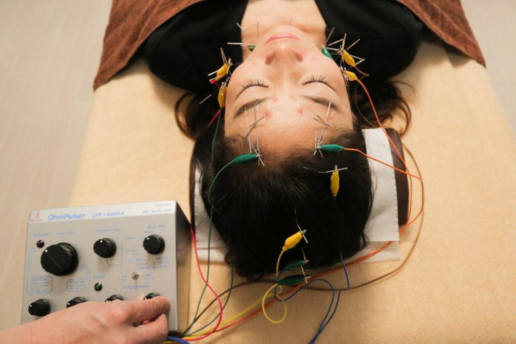 顔全体に電気を流す事がアンチエイジング美容鍼の特徴です。
