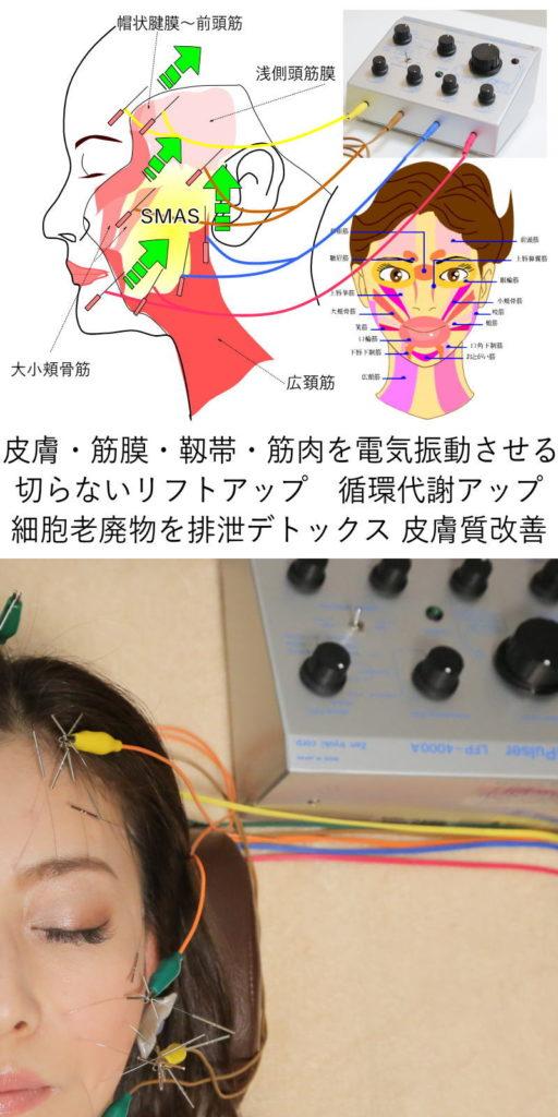 長谷川亮鍼灸院の特徴その1。電気を流す美容鍼です。