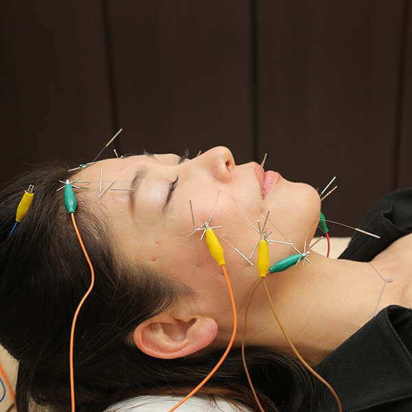 アンチエイジング美容鍼の特徴は顔全体に電気を流す美容鍼です。