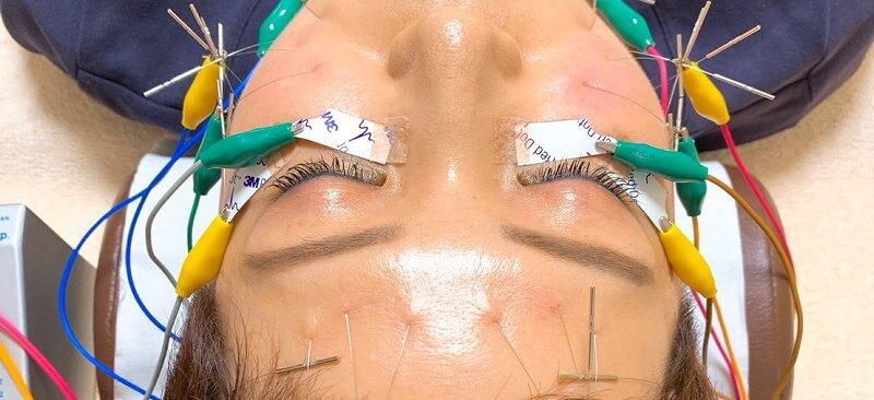 くまの悩みを改善する電気を流す美容鍼