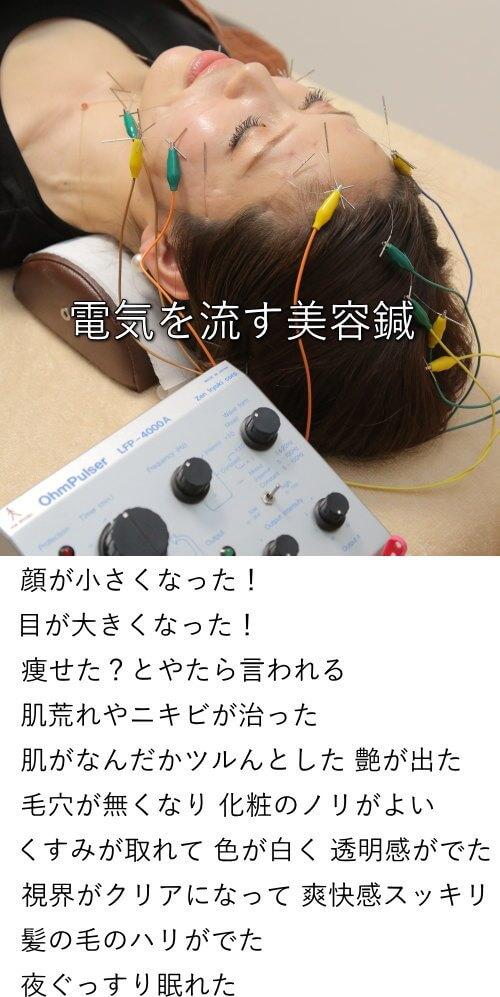 電気を流す美容鍼は目の下のお悩み改善に効果あり