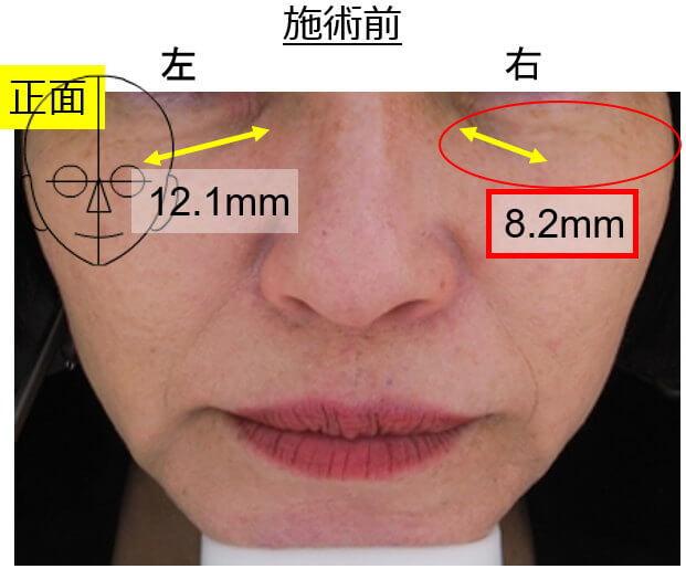 美容鍼で目の下のくまの改善実験