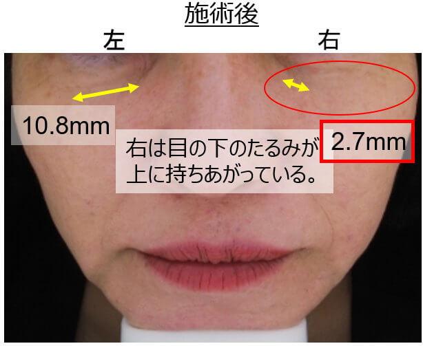 目の下のくまに電気を流す美容鍼は効果がある