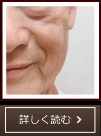 顔のたるみの改善