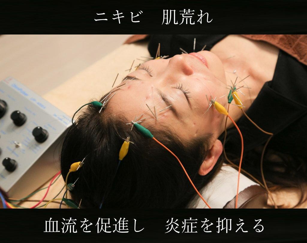 ニキビや肌荒れに電気を流す美容鍼